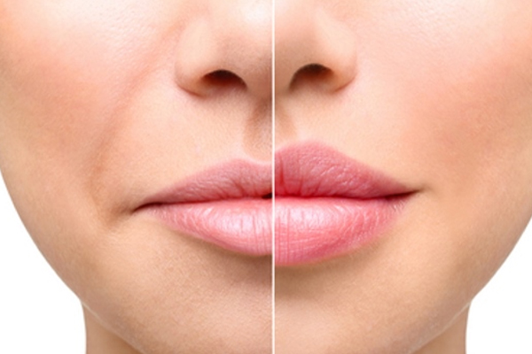 dudak kalınlaştırma